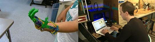 Handprothese, 3D-Drucker